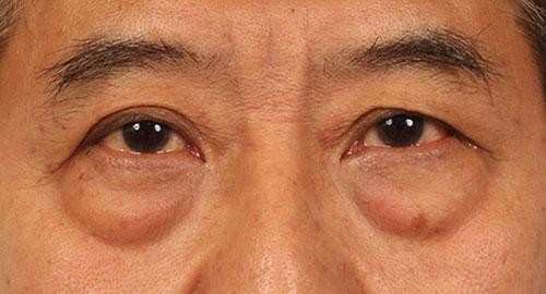 ถุงใต้ตาแท้