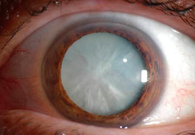 โบท็อกซ์หน้าเรียว,โบท็อกซ์ลดกราม,วัดแว่นสายตา,วัดแว่น,ฟิลเลอร์,ฟิลเลอร์ใต้ตา,ตาลึก,ถุงใต้ตา,ตาคล้ำ,ขอบตาดำ,รอยตีนกา,แก้ไขฟิลเลอร์,นพ.ลัทธพล ม้าลายทอง,