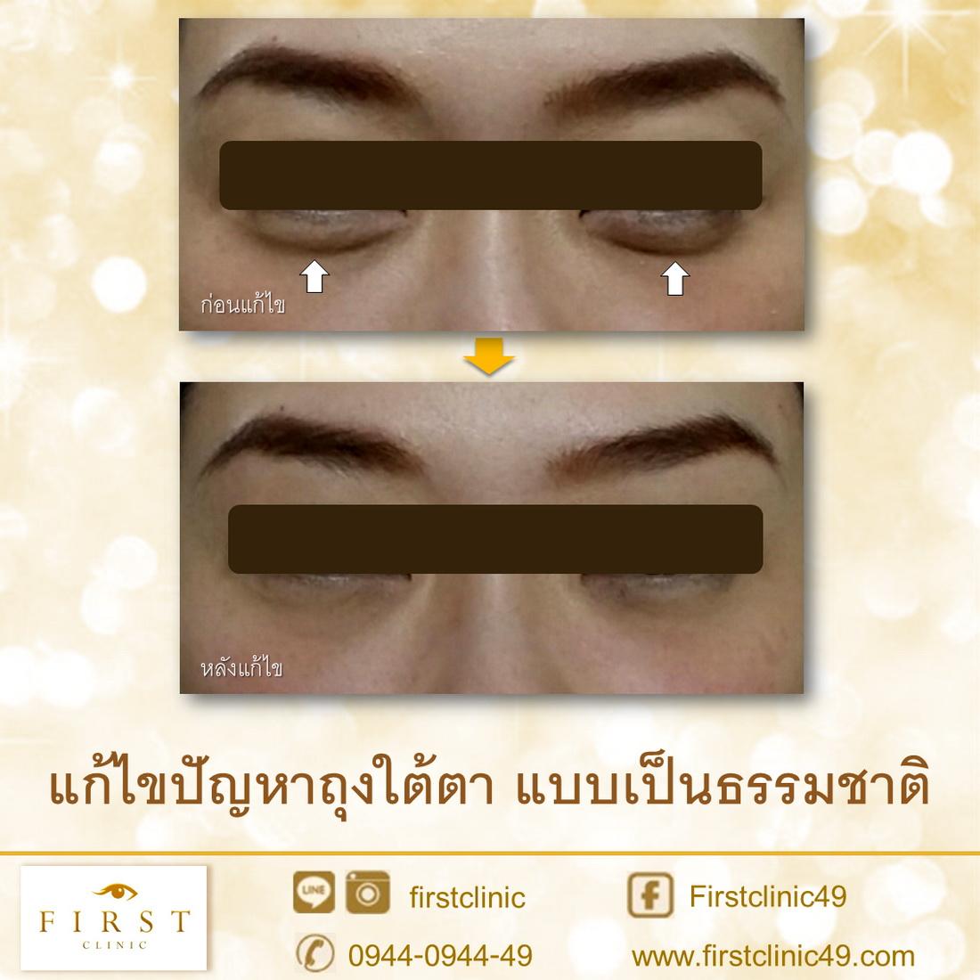 ถุงใต้ตา 2