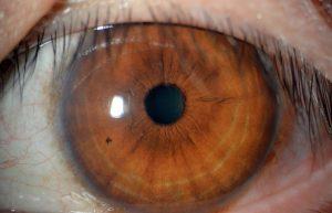 สายตาสั้น คืออะไร