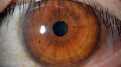 สายตาเอียง คืออะไร